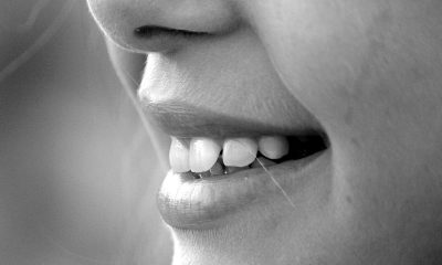 Do soft drinks lead to tooth wear?