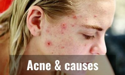 Here are the major causes of Acne!