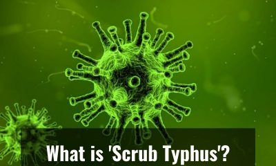 Everything you need to know about mysterious viral fever 'Scrub Typhus'