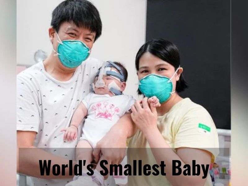 'World's Smallest Baby' goes home after 13 months in hospital